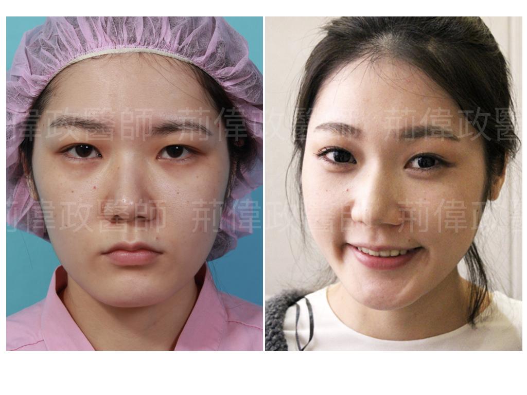荊偉政醫師、極緻醫美、眼整形權威、雙眼皮手術推薦、雙眼皮自然形成、雙眼皮單眼皮、縫雙眼皮、割雙眼皮推薦醫師、台北雙眼皮權威.jpeg
