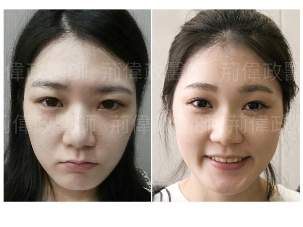 荊醫師、極緻醫美、眼整形權威、割雙眼皮推薦醫師、台北雙眼皮權威、台北雙眼皮手術推薦、雙眼皮手術失敗、大小眼、整形外科醫師推薦.jpeg
