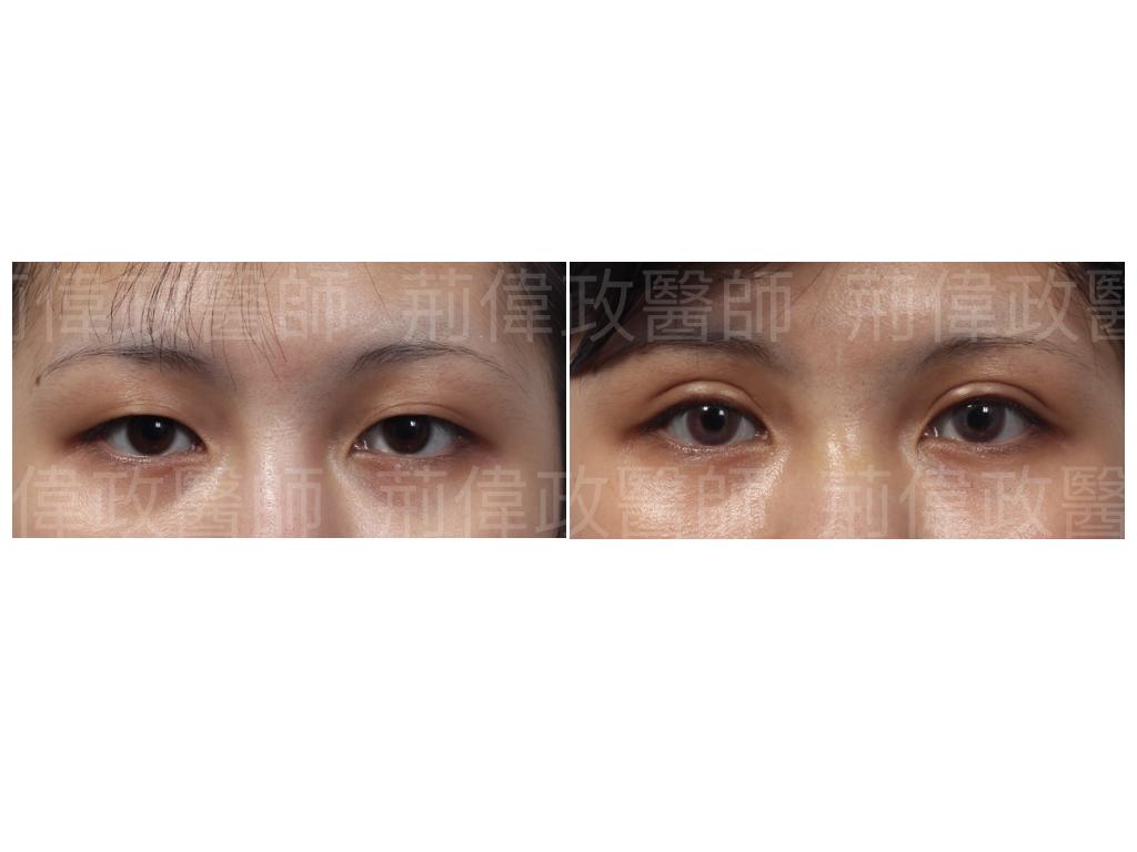 荊偉政醫師、眼整形、雙眼皮、縫雙眼皮、割雙眼皮、訂書針雙眼皮、割雙眼皮手術醫師推薦、雙眼皮手術失敗、高雄割雙眼皮價錢.jpeg