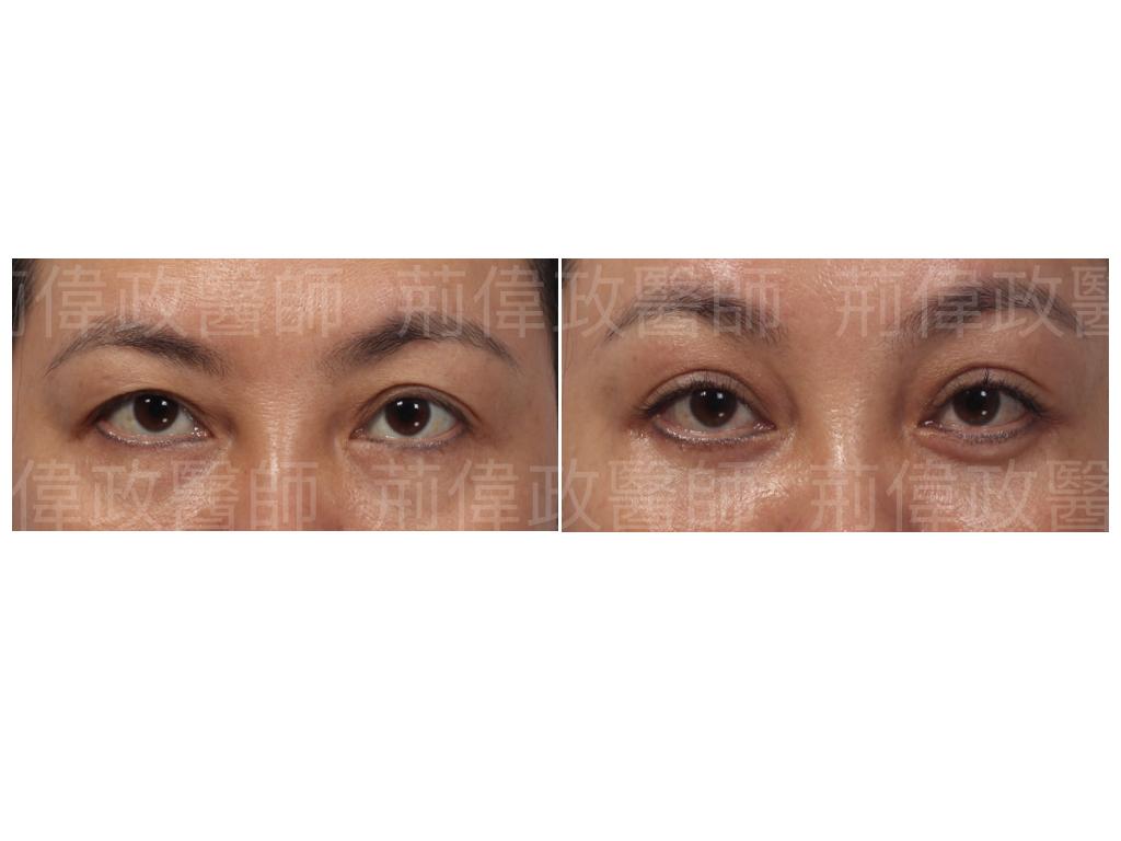 荊偉政醫師、極緻、眼整形權威、眼整形推薦、眼整形外科、雙眼皮手術費用、雙眼皮手術推薦、割雙眼皮、割雙眼皮恢復期多久.jpeg