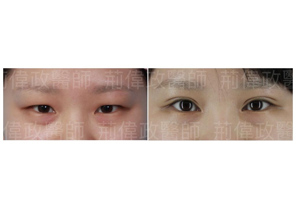 荊偉政醫師、極緻、眼整形權威、提眼瞼肌、雙眼皮自然形成、雙眼皮單眼皮、縫雙眼皮、割雙眼皮、割雙眼皮恢復期多久.jpeg