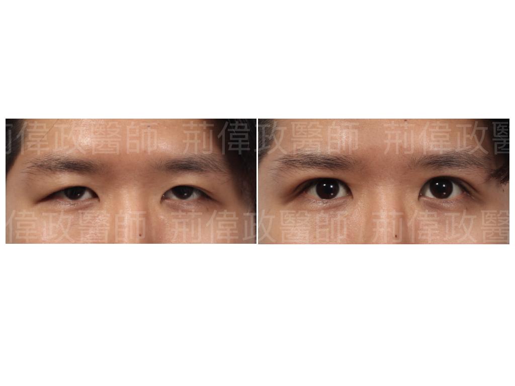 荊偉政醫師、極緻醫美、眼整形權威、眼瞼肌無力、眼整形推薦、台北雙眼皮手術推薦、訂書針雙眼皮、台北雙眼皮權威、台北雙眼皮手術推薦.jpeg