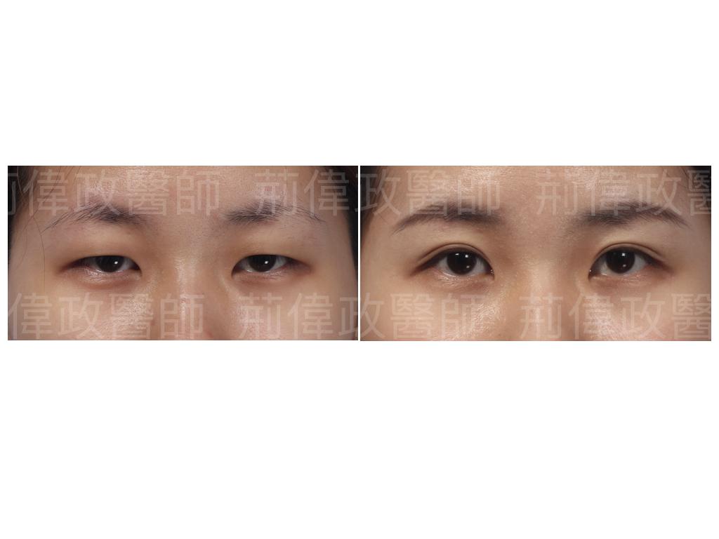 荊醫師、極緻、眼整形權威、提眼瞼肌、眼瞼肌無力、台北雙眼皮權威、台北雙眼皮手術推薦、台南割雙眼皮價錢、台中割雙眼皮價錢.jpeg