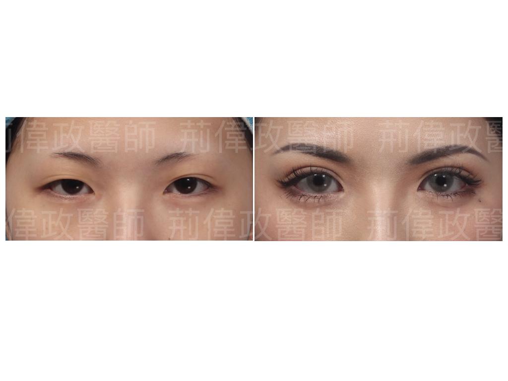 眼整形、極緻醫美、眼整形權威、提眼瞼肌、雙眼皮手術醫師推薦、雙眼皮手術失敗、大小眼、台中割雙眼皮價錢、高雄割雙眼皮價錢.jpeg