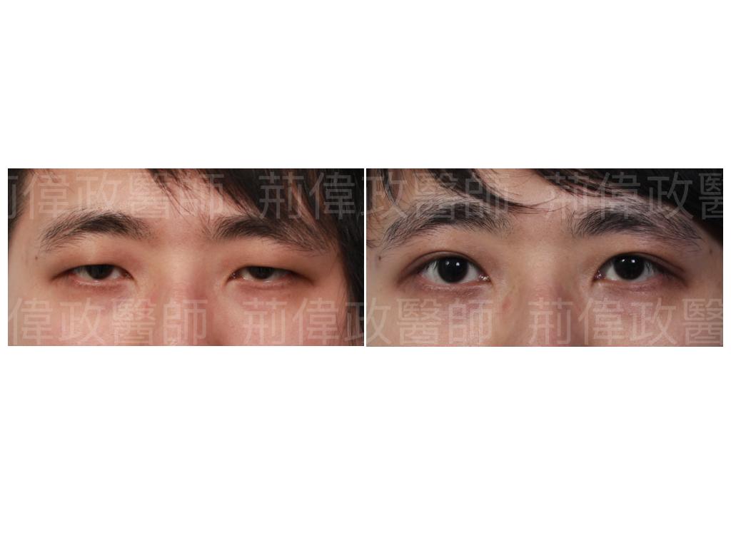 提眼瞼肌、極緻醫美、眼整形權威、大小眼、整形外科醫師推薦、提眼肌手術費用、提眼肌手術復原、提眼肌無力推薦、提眼肌失敗.jpeg