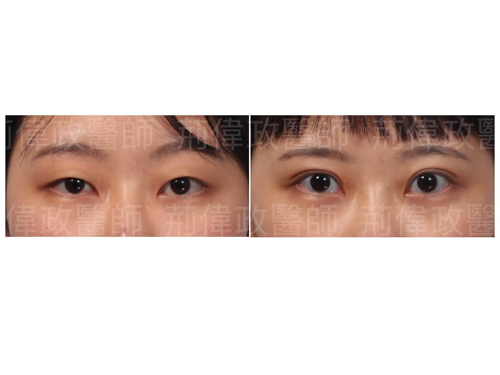 眼整形、割雙眼皮、割雙眼皮恢復期多久、台北雙眼皮手術推薦、訂書針雙眼皮、割雙眼皮手術醫師推薦、台中割雙眼皮價錢、高雄割雙眼皮價錢、香港雙眼皮手術價錢.jpeg
