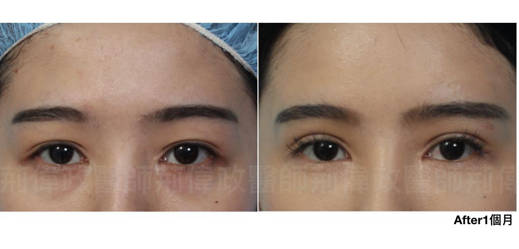 雙眼皮、雙眼皮自然形成、雙眼皮單眼皮、縫雙眼皮、割雙眼皮.jpeg