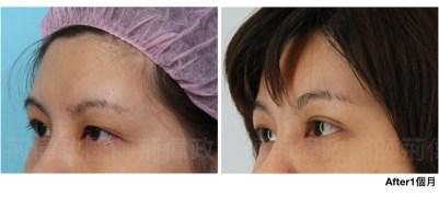 內視鏡提眉香港、提眉費用、提眉手術推薦、拉皮手術費用.jpeg