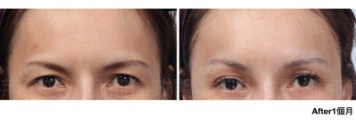 台北整型診所推薦、提眉手術價格、內視鏡提眉手術、提眉手術推薦.jpeg