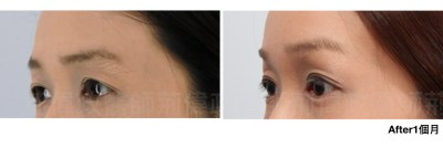 荊偉政、提眉手術價格、內視鏡提眉手術、提眉手術推薦、提眉肌.jpeg