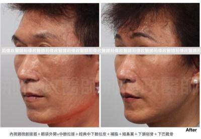 提眉手術恢復期、內視鏡提眉香港、提眉費用、提眉手術推薦.jpeg