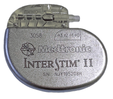 Image of an Interstim™ II device, supplied by Medtronic