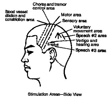 Tinnitus and Loss of Hearing