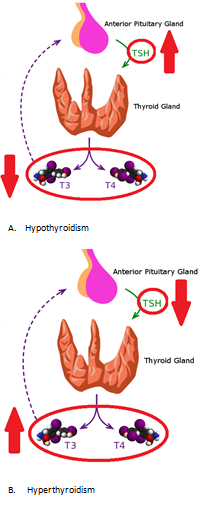 picture showing hypo and hyper thyroidism