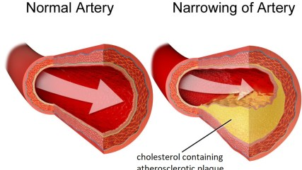 diagram showing healthy artery versus artery with atherosclerotic plaque.