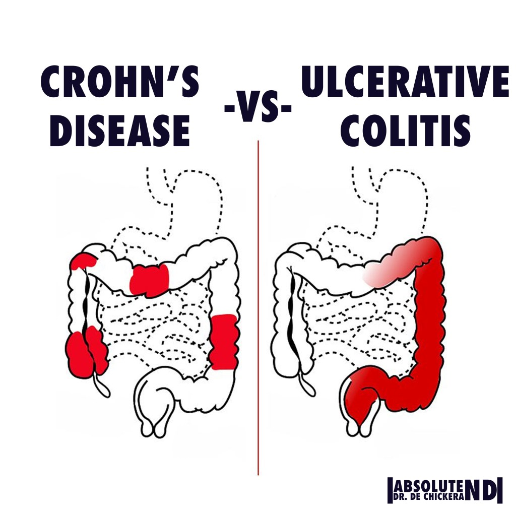 AUTOIMMINE_IBD_Difference between crohns and colitis LOCATIONS