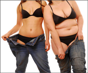 Liposuction-before-after photo