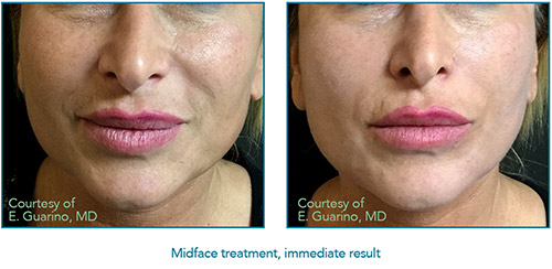 Thread Lift - Face Marie DiLauro MD - Reflections