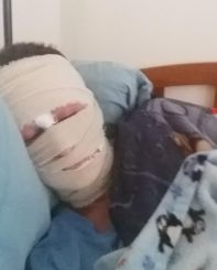 Briana Banos, bed ridden, with shaved head, and face wrapped in bandages due to her Red Skin Syndrome (RSS) caused by Topical Steroid Withdrawal (TSW)