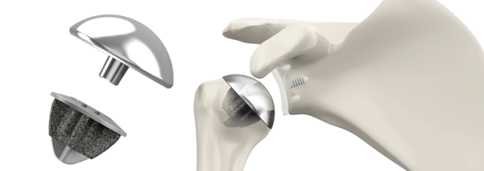 Shoulder replacement- Stemless (Simpliciti)