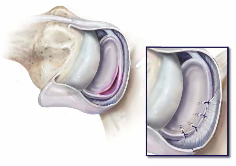 Labral tear- Bankart repair