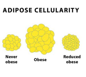 Once you have a certain amount of fat cells, they can only shrink in size -- never disappear.