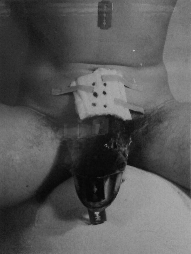 Schwarzkogler: 3. Aktion 1965