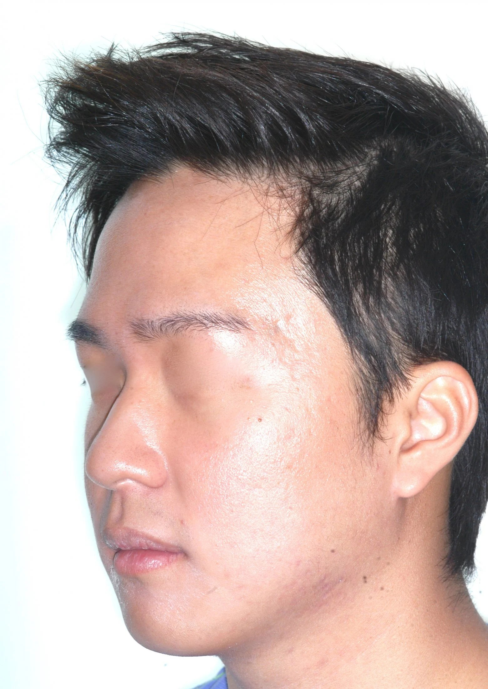 bob haircut jawline