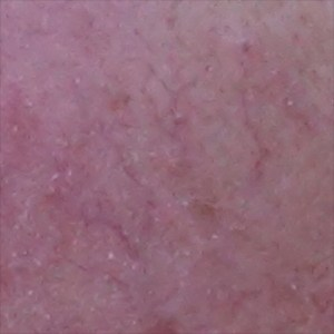 Below is the spider veins, or telangectasia, seen in advanced rosacea.
