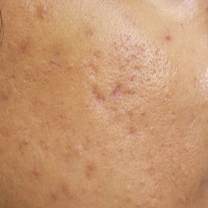 cystic acne during treatment Chinese Medicine