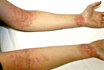 Atopic/ allergic eczema of the arms - before treatment