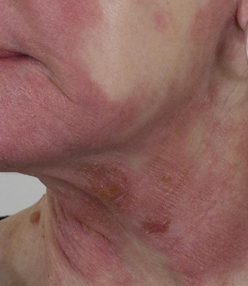 Eczema - before