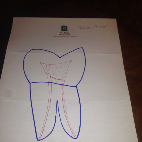 tooth picture