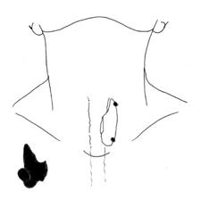 ParaThyroïde · Dr Pierre Fournier