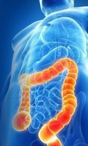 sindrome dell'intestino irritabile