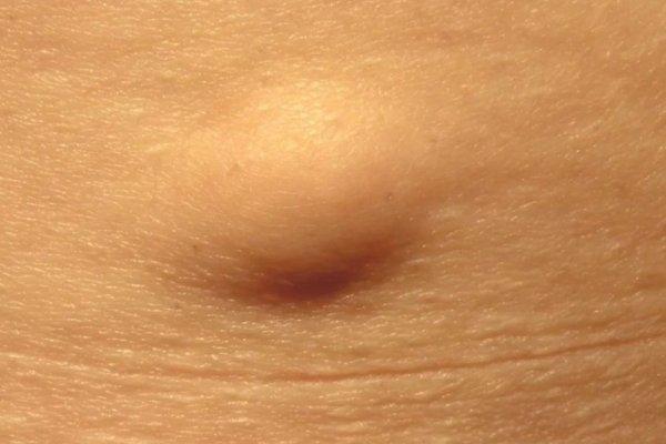 Lipoma: cos'è, cause, diagnosi, trattamento