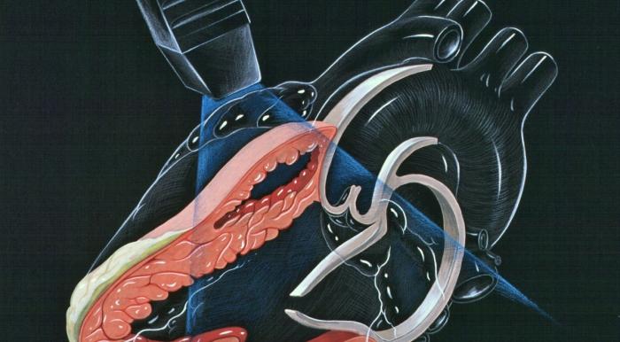 Ultrazvuk srca