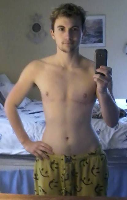 FTM patient with their shirt off