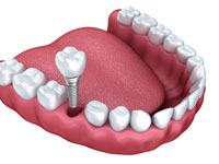 Dental Implants East Cobb Marietta Georgia dentist office