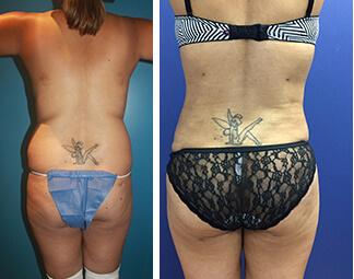 Liposuction cosmetic surgery