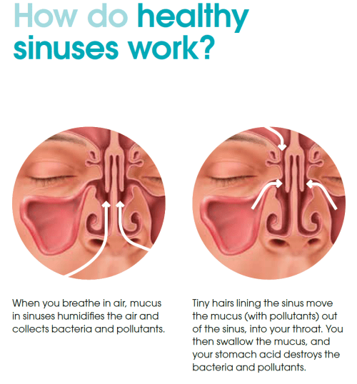 small resolution of common sinus problems