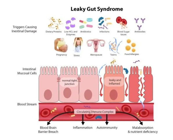 Symptoms and Warning Signs That You Just Might Have A Leaky Gut- 3