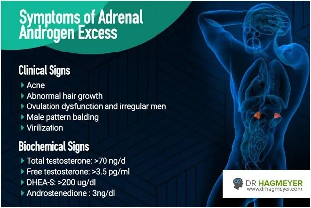 What is Adrenal Androgens Excess?