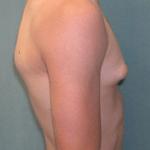 skinny gyneco 2