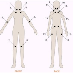 18 Tender Points Of Fibromyalgia Diagram Boat Trailer Wiring 5 Pin And Physical Therapy With The Mckenzie Method