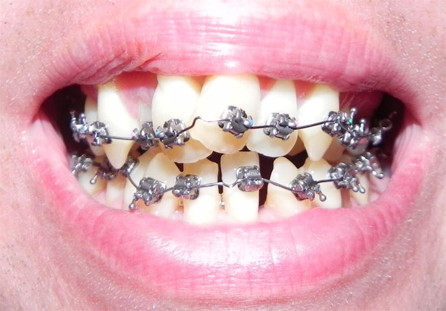 Risks of Do-It-Yourself Braces at Home
