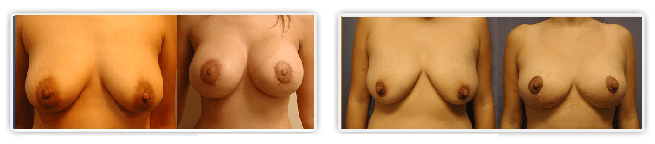 breast lift procedures