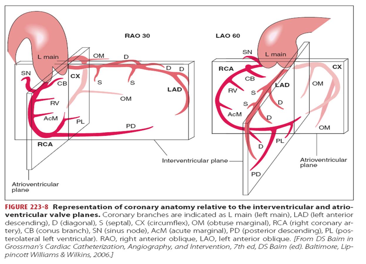 coronary arteries diagram branches 2002 pontiac stereo wiring ramus artery intermedius