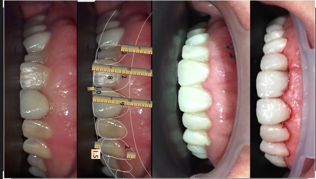 Utilizing DSD in designing our veneers.