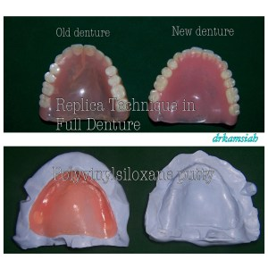 I use replica technique in all my complete denture cases by keeping the good features of the old denture and omit those that are not satisfactory to the patient.
